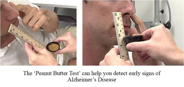 Peanut Butter Alzheimers